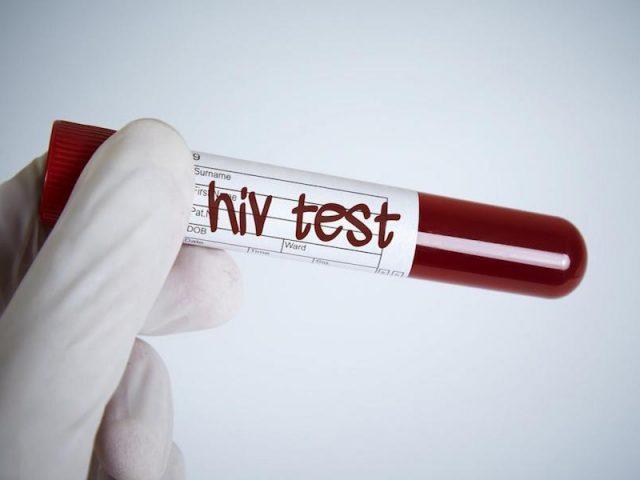 """Coronavirus: que lecciones nos dejó el sida, la """"peor pandemia de finales del siglo XX"""", para hacer frente al covid-19"""